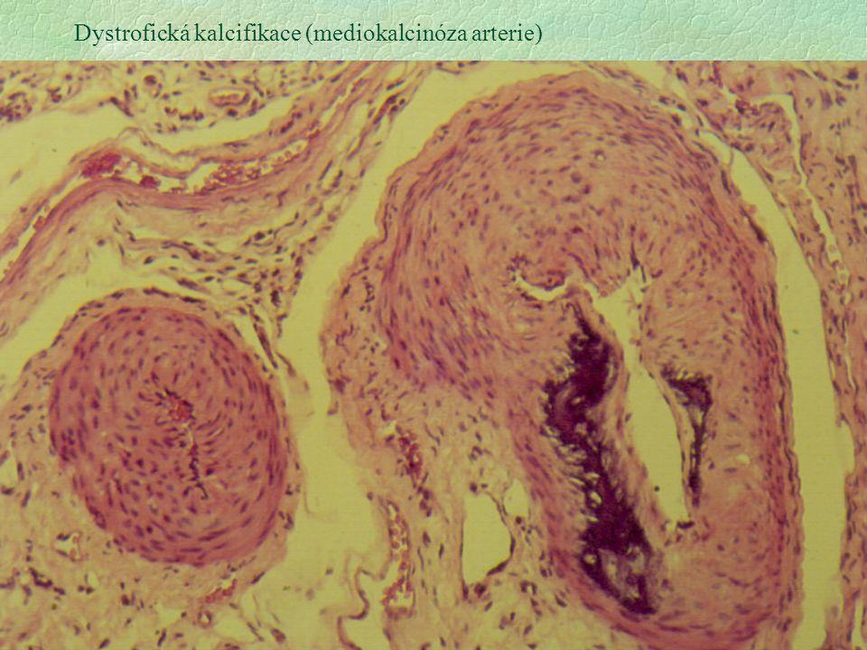 6 Dystrofická kalcifikace (mediokalcinóza arterie)