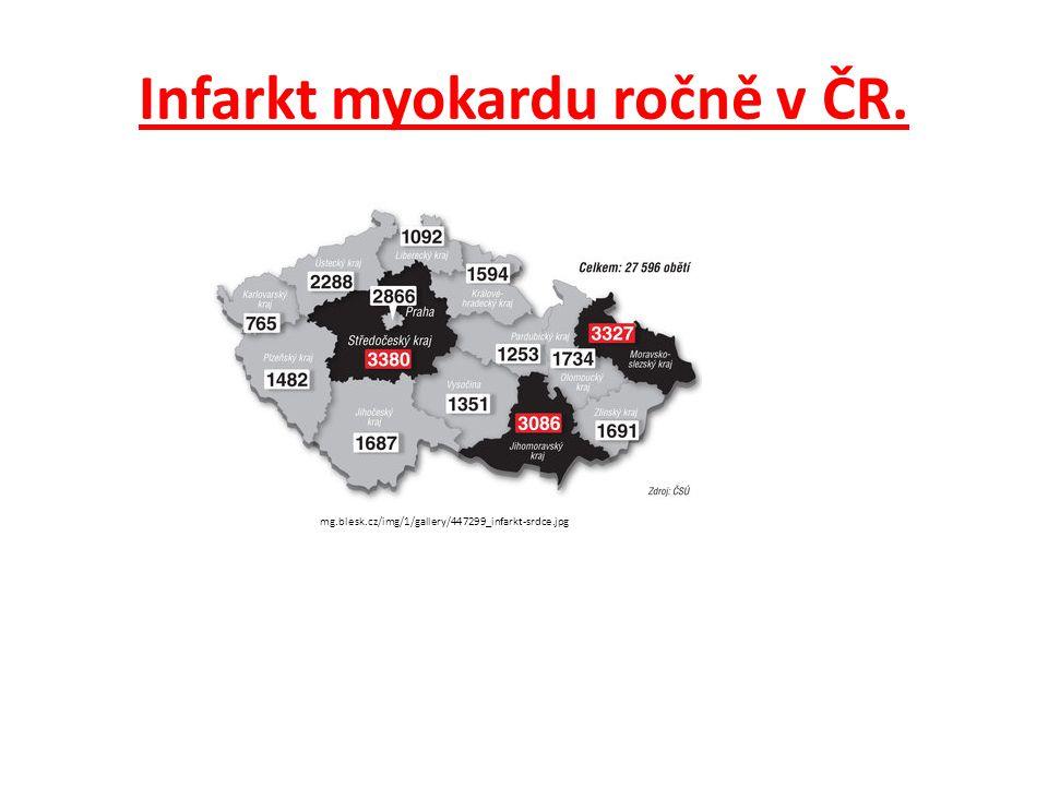 Infarkt myokardu ročně v ČR. mg.blesk.cz/img/1/gallery/447299_infarkt-srdce.jpg
