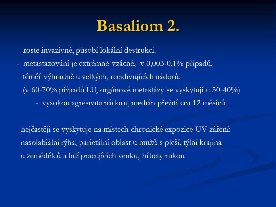 Basaliom 2. - roste invazivně, působí lokální destrukci. - metastazování je extrémně vzácné, v 0,003-0,1% případů, téměř výhradně u velkých, recidivuj