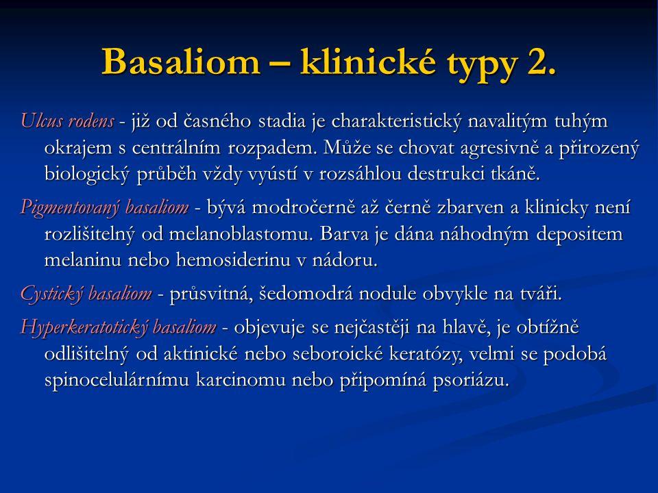 Basaliom – klinické typy 2. Ulcus rodens - již od časného stadia je charakteristický navalitým tuhým okrajem s centrálním rozpadem. Může se chovat agr
