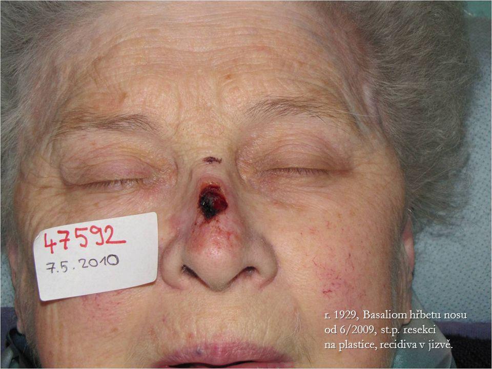 r. 1929, Basaliom hřbetu nosu od 6/2009, st.p. resekci na plastice, recidiva v jizvě.
