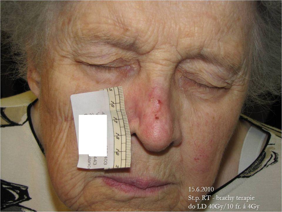 15.6.2010 St.p. RT - brachy terapie do LD 40Gy/10 fr. á 4Gy