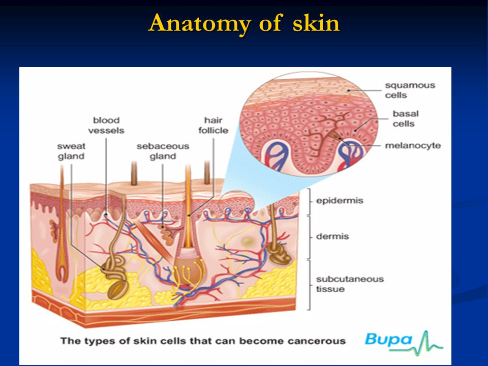 Melanoma – clasification Clark and Breslow (deep of invasion according to histological layers of skin, thickness in mm) Clark I melanoma in situ: atypic melanocytar hyperplasia, melanocytar dysplasia, malignant noninvasive lession (Tis) Clark II tumor invades stratum papillare (pT1, thickness of tumor less than 0,75 mm) Clark III tumor invades edge between stratum papillare and stratum reticulare (pT2, thisckness of tumor 0,75-1,5 mm) Clark IV tumor invades stratum reticulare (pT3, thisckness of tumor 1,5-4,0 mm) Clark V tumor invades subcutis (pT4, thickness of tumor more than 4,0 mm)