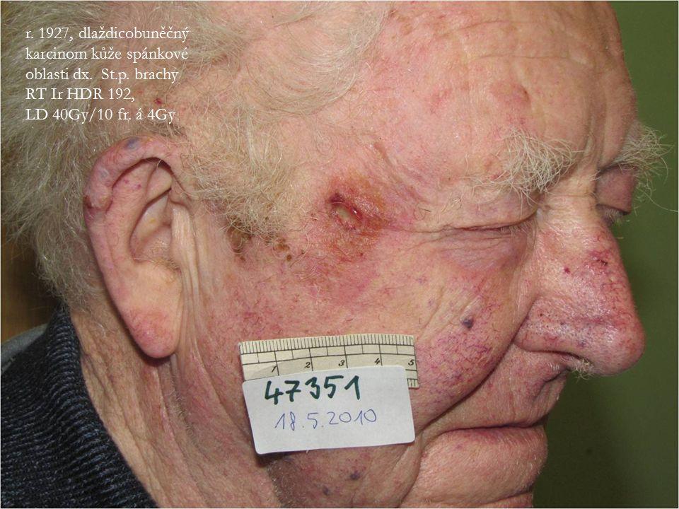 r. 1927, dlaždicobuněčný karcinom kůže spánkové oblasti dx. St.p. brachy RT Ir HDR 192, LD 40Gy/10 fr. á 4Gy