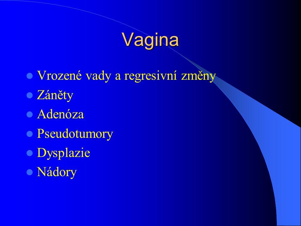Vagina Vrozené vady a regresivní změny Záněty Adenóza Pseudotumory Dysplazie Nádory