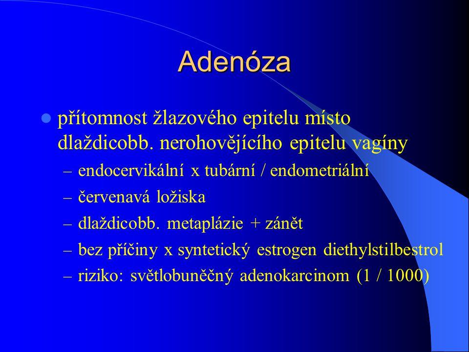 Adenóza přítomnost žlazového epitelu místo dlaždicobb. nerohovějícího epitelu vagíny – endocervikální x tubární / endometriální – červenavá ložiska –