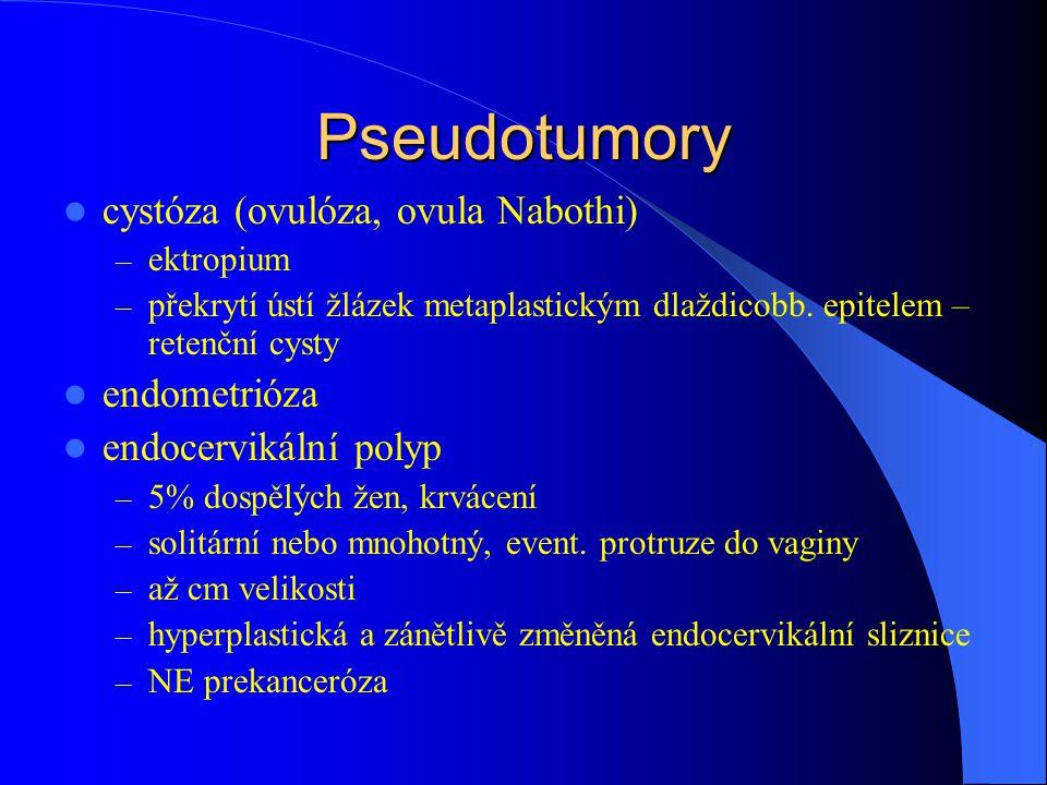 Pseudotumory cystóza (ovulóza, ovula Nabothi) – ektropium – překrytí ústí žlázek metaplastickým dlaždicobb.