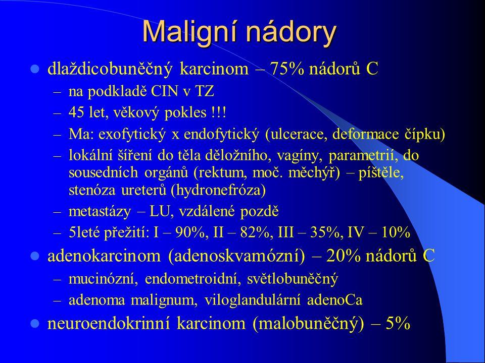 Maligní nádory dlaždicobuněčný karcinom – 75% nádorů C – na podkladě CIN v TZ – 45 let, věkový pokles !!! – Ma: exofytický x endofytický (ulcerace, de