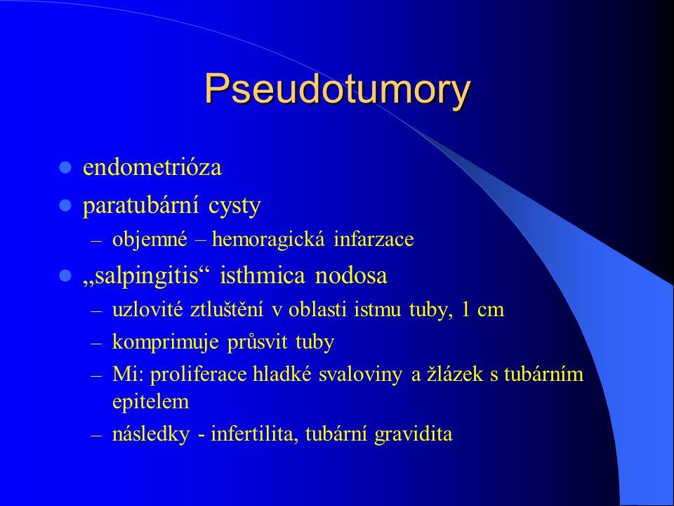 """Pseudotumory endometrióza paratubární cysty – objemné – hemoragická infarzace """"salpingitis isthmica nodosa – uzlovité ztluštění v oblasti istmu tuby, 1 cm – komprimuje průsvit tuby – Mi: proliferace hladké svaloviny a žlázek s tubárním epitelem – následky - infertilita, tubární gravidita"""
