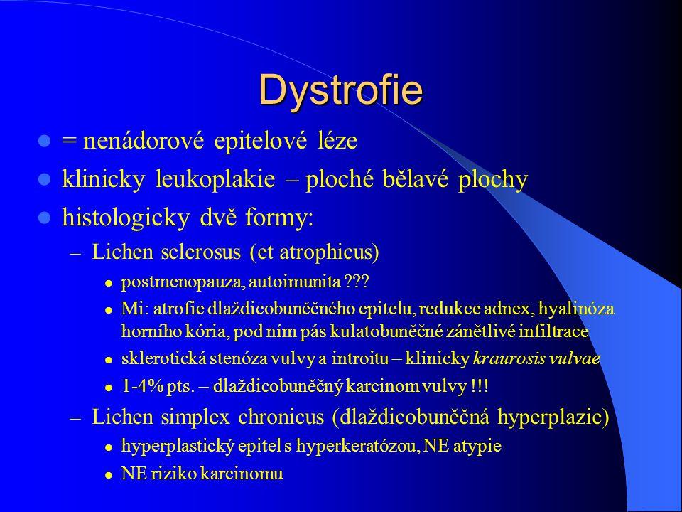 Dystrofie = nenádorové epitelové léze klinicky leukoplakie – ploché bělavé plochy histologicky dvě formy: – Lichen sclerosus (et atrophicus) postmenop