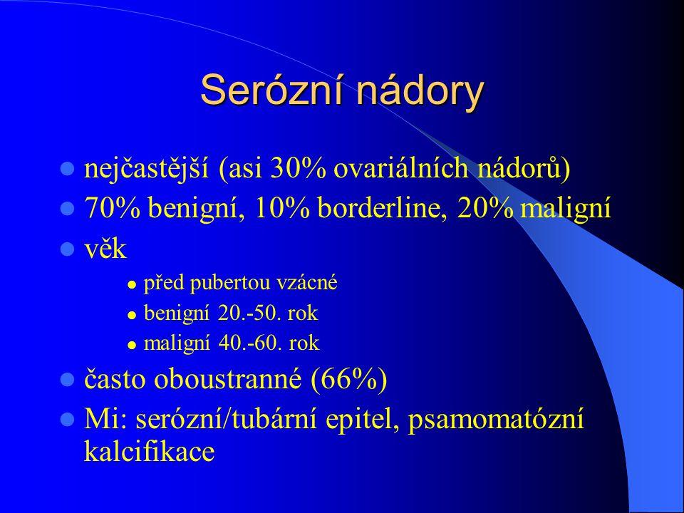 Serózní nádory nejčastější (asi 30% ovariálních nádorů) 70% benigní, 10% borderline, 20% maligní věk před pubertou vzácné benigní 20.-50. rok maligní