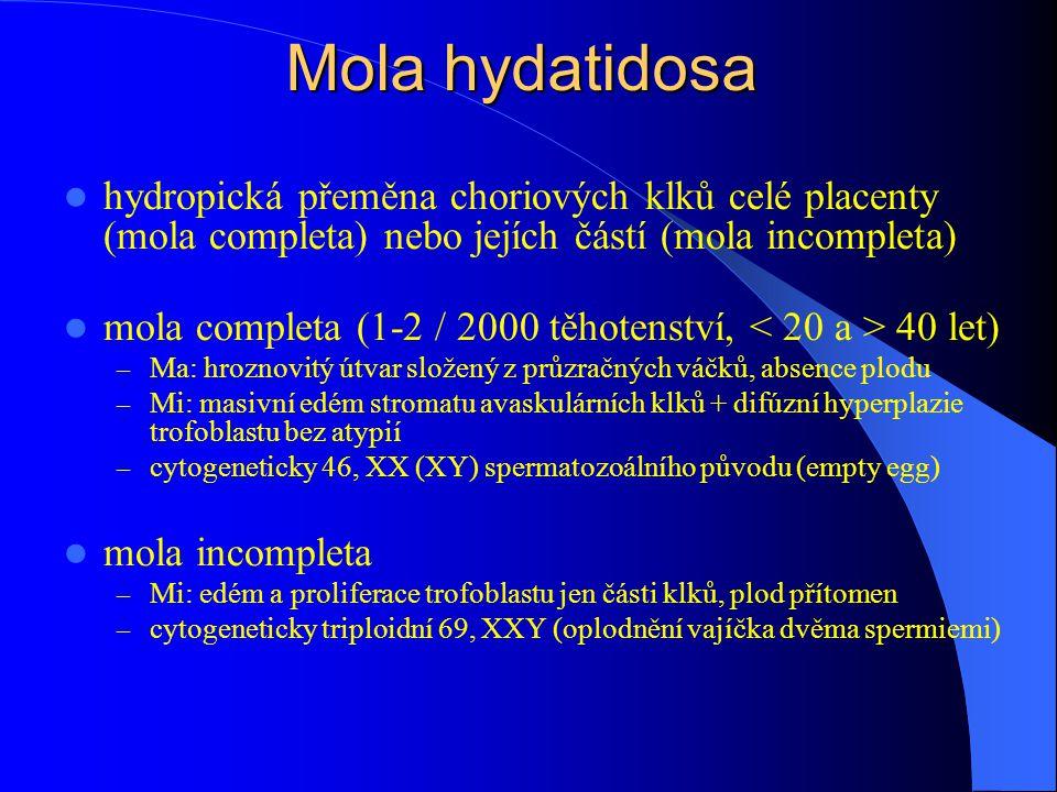 Mola hydatidosa hydropická přeměna choriových klků celé placenty (mola completa) nebo jejích částí (mola incompleta) mola completa (1-2 / 2000 těhotenství, 40 let) – Ma: hroznovitý útvar složený z průzračných váčků, absence plodu – Mi: masivní edém stromatu avaskulárních klků + difúzní hyperplazie trofoblastu bez atypií – cytogeneticky 46, XX (XY) spermatozoálního původu (empty egg) mola incompleta – Mi: edém a proliferace trofoblastu jen části klků, plod přítomen – cytogeneticky triploidní 69, XXY (oplodnění vajíčka dvěma spermiemi)