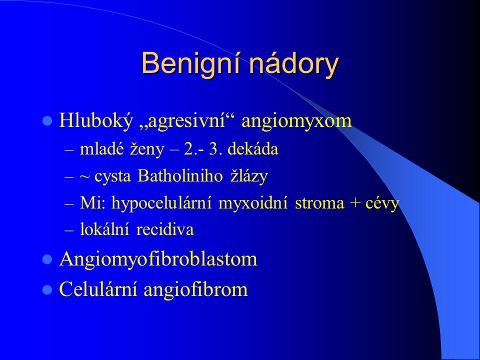 Maligní nádory endometria adenokarcinom endometria – nejčastější maligní nádor ženského genitálu – vrchol 55.