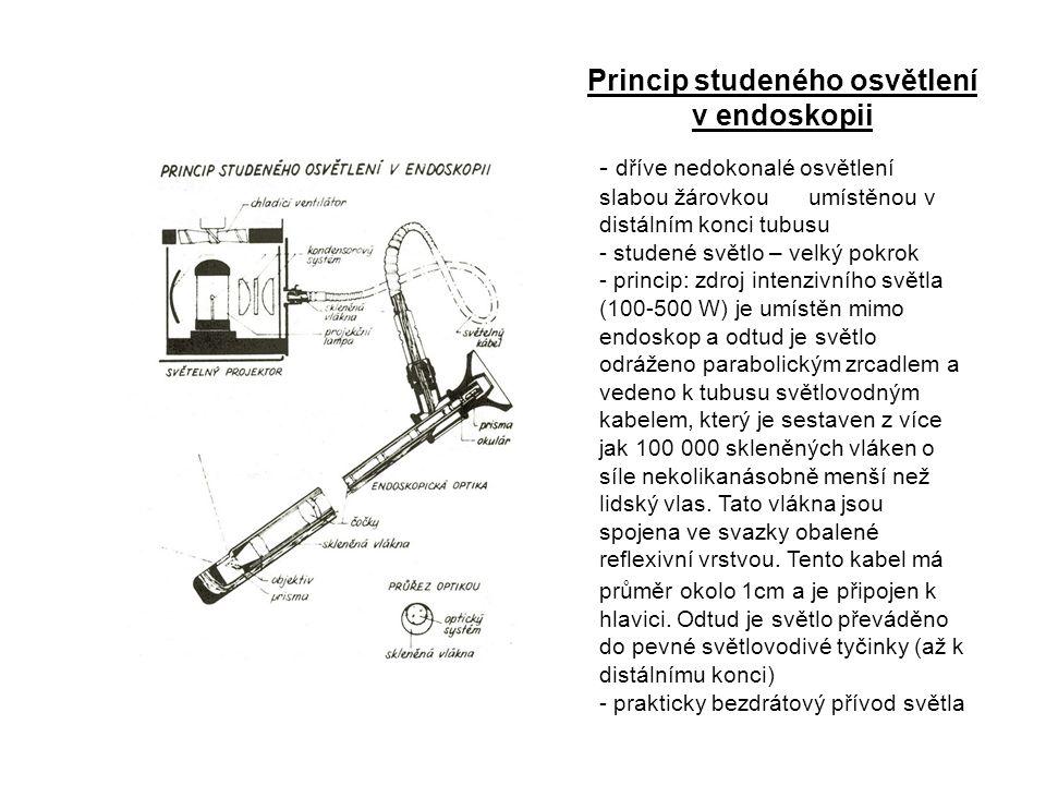 Princip studeného osvětlení v endoskopii - dříve nedokonalé osvětlení slabou žárovkou umístěnou v distálním konci tubusu - studené světlo – velký pokr
