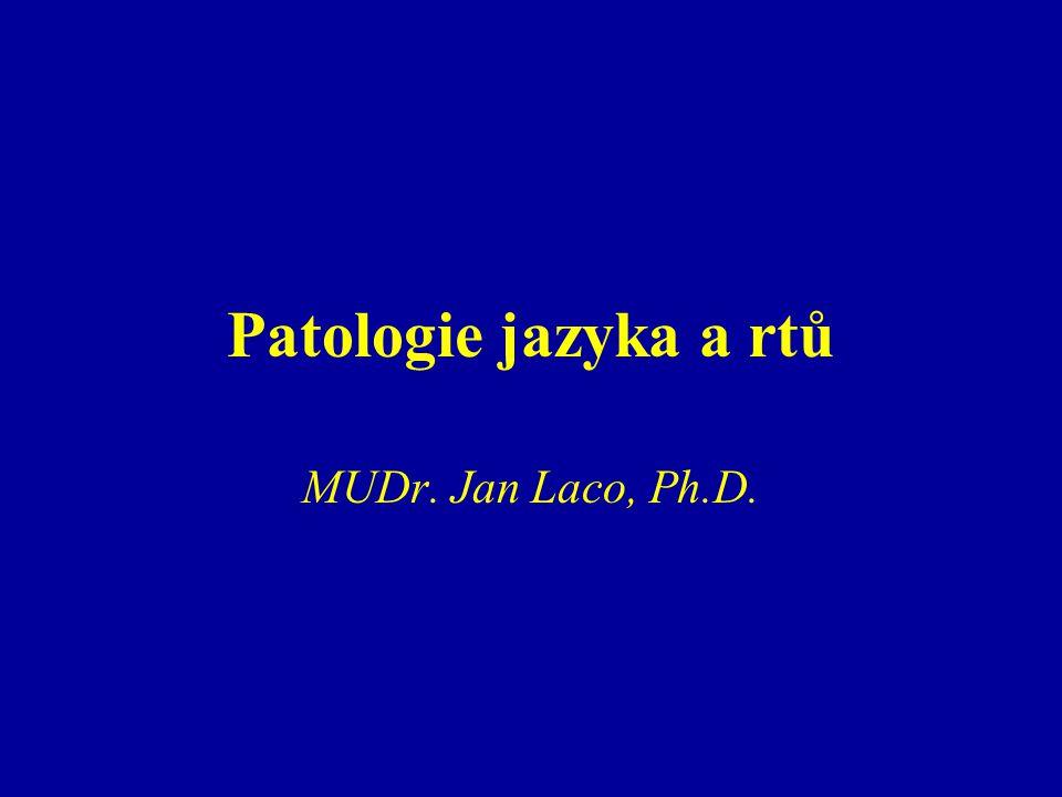 Různé choroby Lingua villosa nigra (hairy tongue) –etiologie ?, kouření, antiseptika, zubní pasty, Candida –dospělí, asymptomatické –klinicky: zmnožení (1-2 dny) hnědého či hnědočerného povlaku na dorsu jazyka od sulcus terminalis apikálně; diskolorace – bakteriální produkty –Mikro: nadměrné rohovění nitkovitých papil