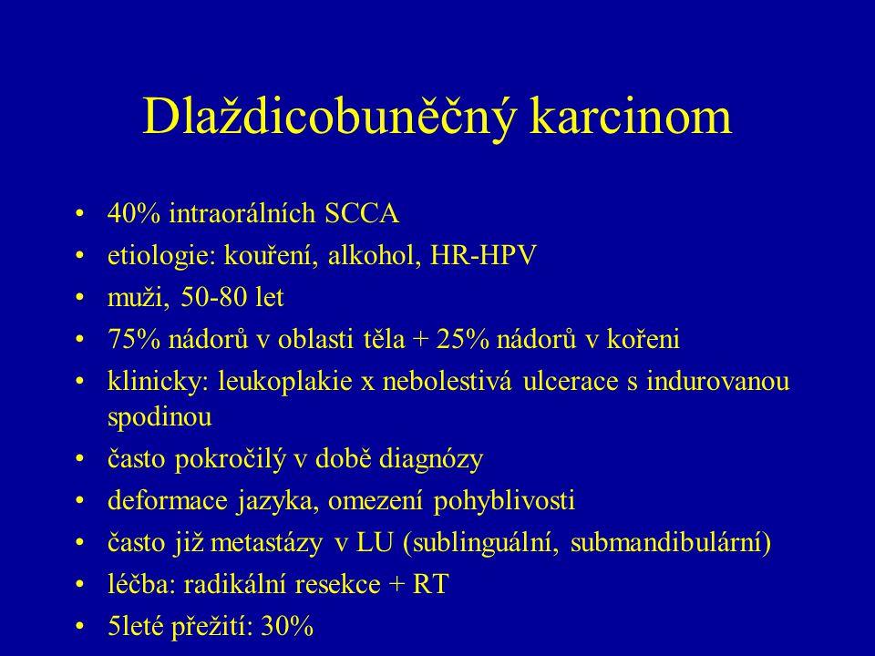 Dlaždicobuněčný karcinom 40% intraorálních SCCA etiologie: kouření, alkohol, HR-HPV muži, 50-80 let 75% nádorů v oblasti těla + 25% nádorů v kořeni kl