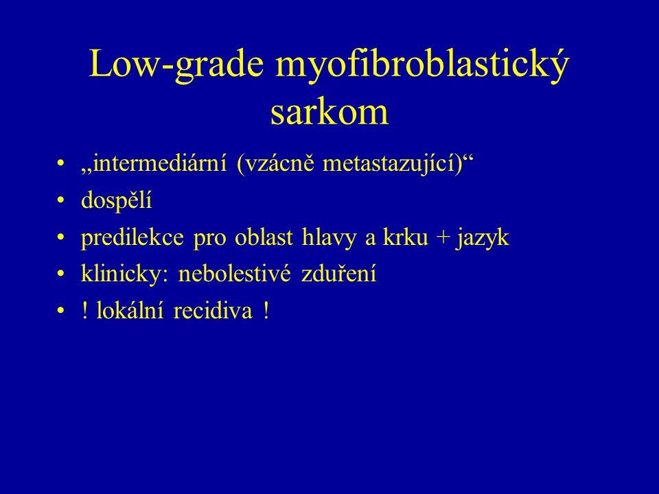 """Low-grade myofibroblastický sarkom """"intermediární (vzácně metastazující)"""" dospělí predilekce pro oblast hlavy a krku + jazyk klinicky: nebolestivé zdu"""