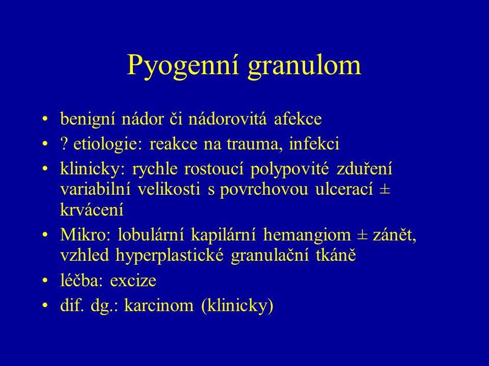 Pyogenní granulom benigní nádor či nádorovitá afekce ? etiologie: reakce na trauma, infekci klinicky: rychle rostoucí polypovité zduření variabilní ve