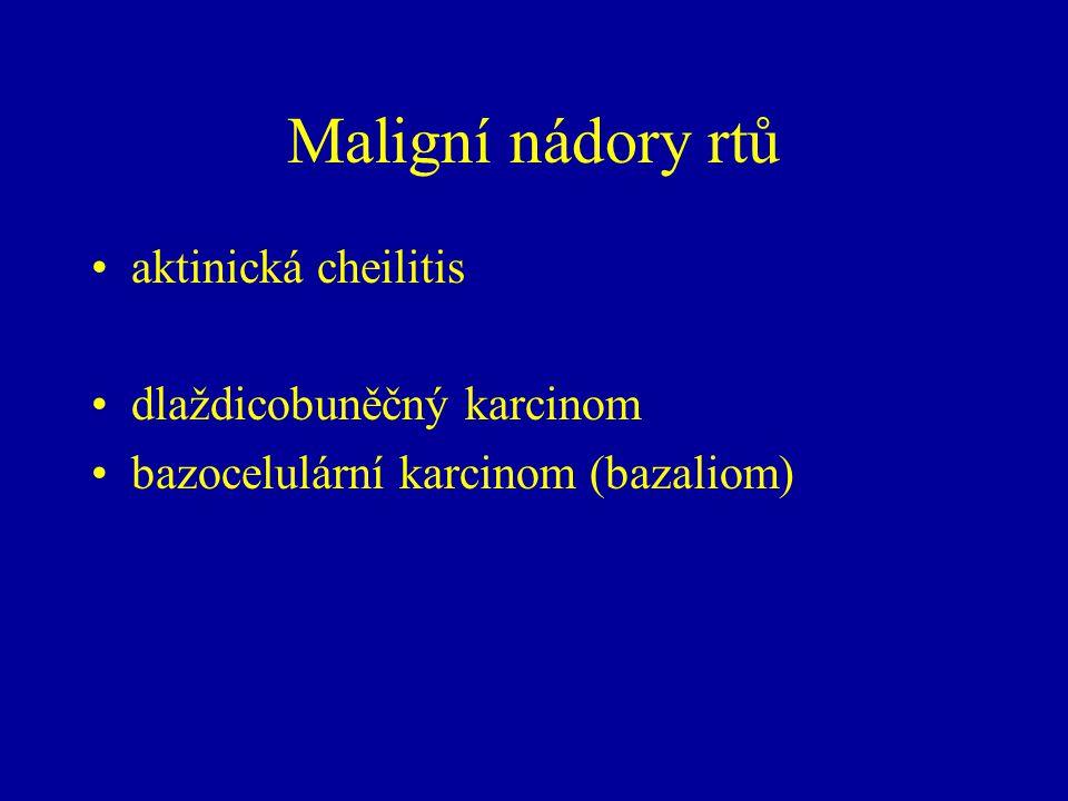 Maligní nádory rtů aktinická cheilitis dlaždicobuněčný karcinom bazocelulární karcinom (bazaliom)