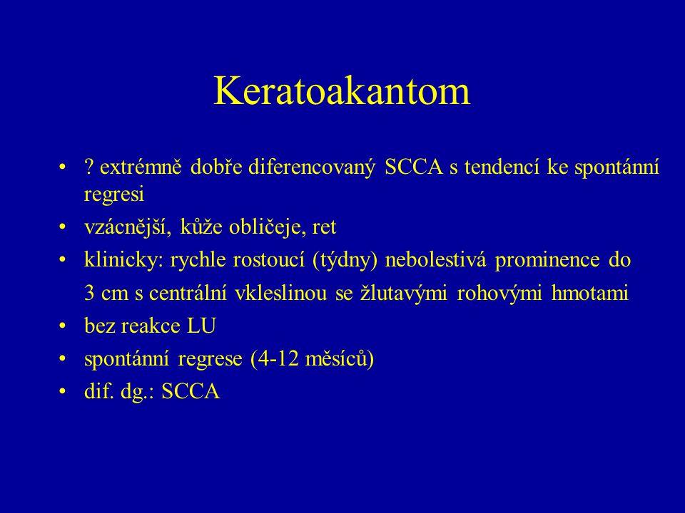 Keratoakantom ? extrémně dobře diferencovaný SCCA s tendencí ke spontánní regresi vzácnější, kůže obličeje, ret klinicky: rychle rostoucí (týdny) nebo