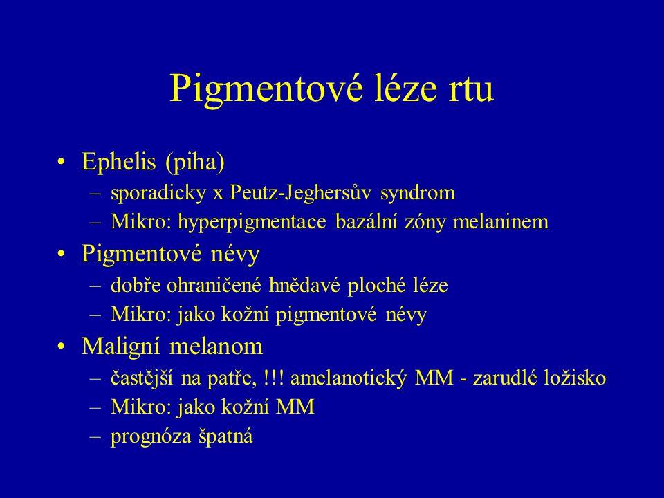 Pigmentové léze rtu Ephelis (piha) –sporadicky x Peutz-Jeghersův syndrom –Mikro: hyperpigmentace bazální zóny melaninem Pigmentové névy –dobře ohranič
