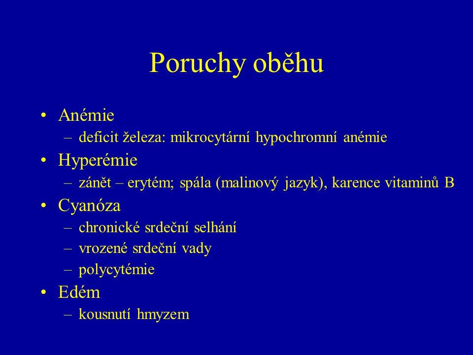 Poruchy oběhu Anémie –deficit železa: mikrocytární hypochromní anémie Hyperémie –zánět – erytém; spála (malinový jazyk), karence vitaminů B Cyanóza –c