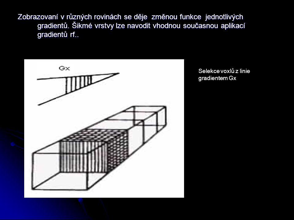 Zobrazovaní v různých rovinách se děje změnou funkce jednotlivých gradientů.