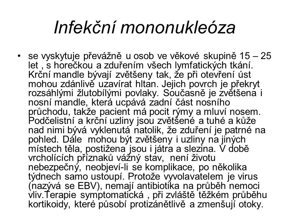 Infekční mononukleóza se vyskytuje převážně u osob ve věkové skupině 15 – 25 let, s horečkou a zduřením všech lymfatických tkání. Krční mandle bývají