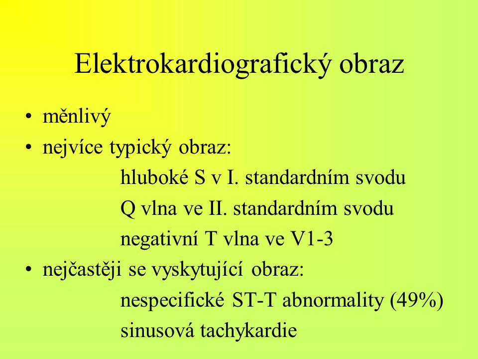 Elektrokardiografický obraz měnlivý nejvíce typický obraz: hluboké S v I. standardním svodu Q vlna ve II. standardním svodu negativní T vlna ve V1-3 n