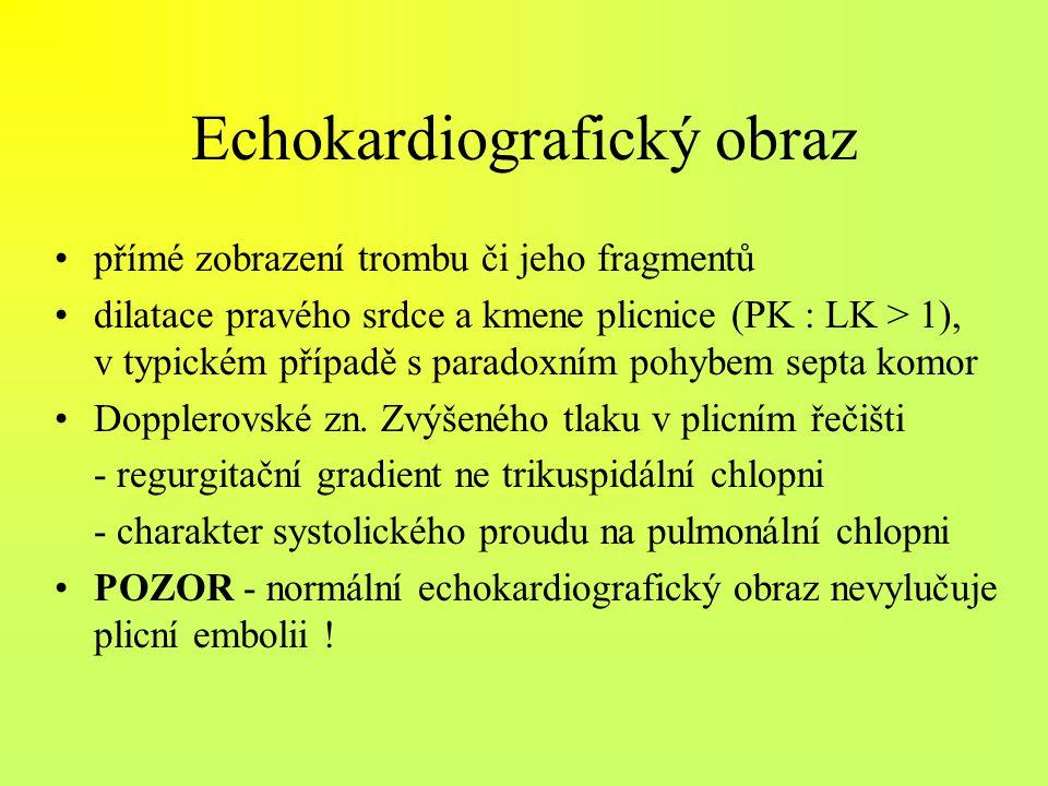 Echokardiografický obraz přímé zobrazení trombu či jeho fragmentů dilatace pravého srdce a kmene plicnice (PK : LK > 1), v typickém případě s paradoxn