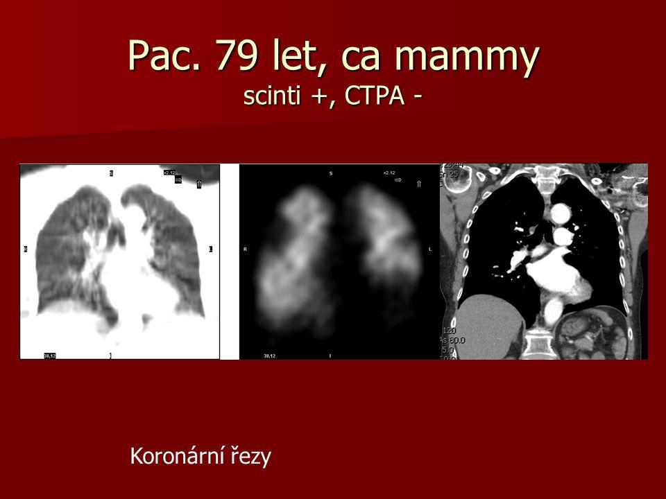 Pac. 79 let, ca mammy scinti +, CTPA - Koronární řezy