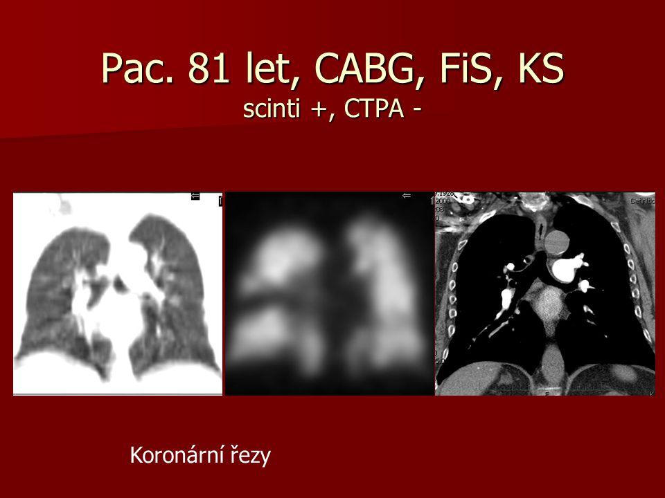 Pac. 81 let, CABG, FiS, KS scinti +, CTPA - Koronární řezy