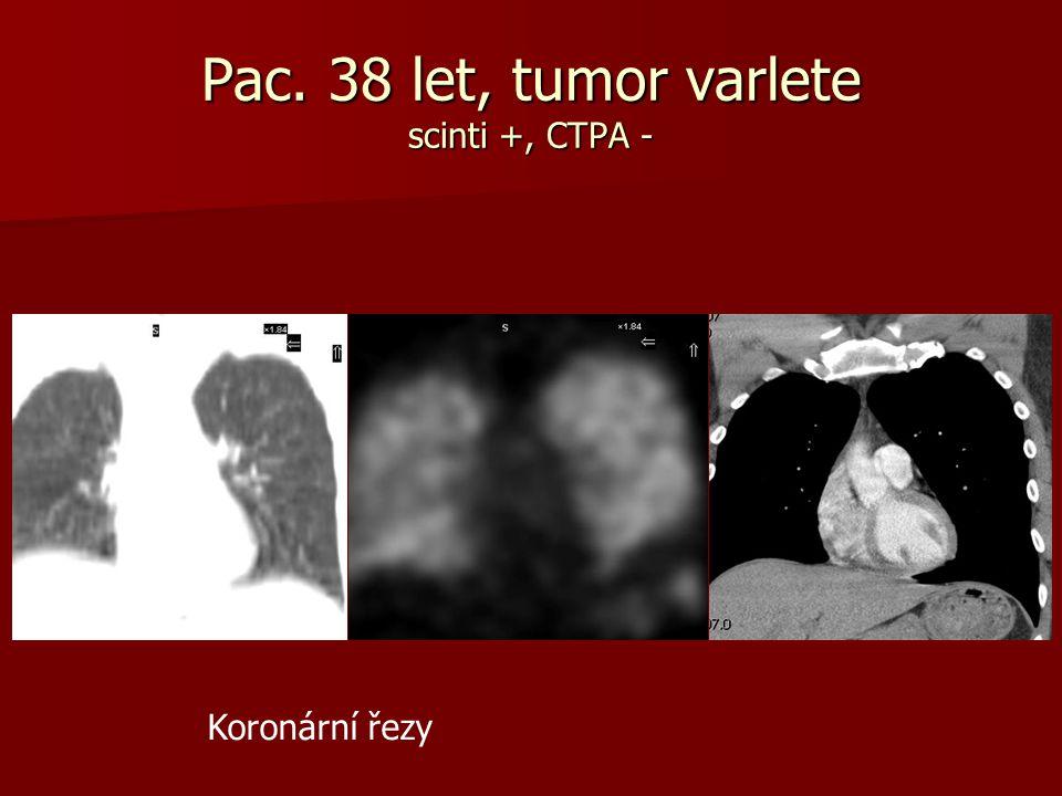 Pac. 38 let, tumor varlete scinti +, CTPA - Koronární řezy