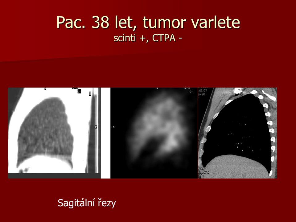 Pac. 38 let, tumor varlete scinti +, CTPA - Sagitální řezy