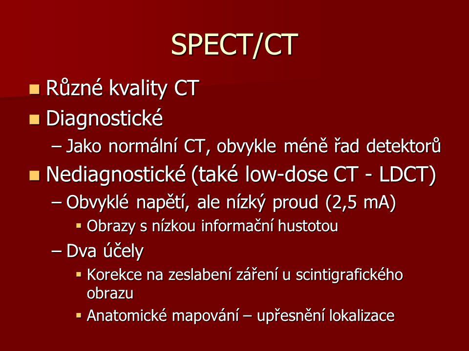 SPECT/CT Různé kvality CT Různé kvality CT Diagnostické Diagnostické –Jako normální CT, obvykle méně řad detektorů Nediagnostické (také low-dose CT - LDCT) Nediagnostické (také low-dose CT - LDCT) –Obvyklé napětí, ale nízký proud (2,5 mA)  Obrazy s nízkou informační hustotou –Dva účely  Korekce na zeslabení záření u scintigrafického obrazu  Anatomické mapování – upřesnění lokalizace