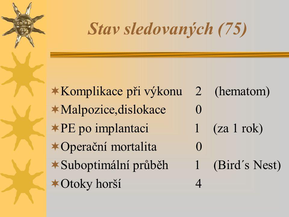 Stav sledovaných (75)  Komplikace při výkonu 2 (hematom)  Malpozice,dislokace 0  PE po implantaci 1 (za 1 rok)  Operační mortalita 0  Suboptimální průběh 1 (Bird´s Nest)  Otoky horší 4