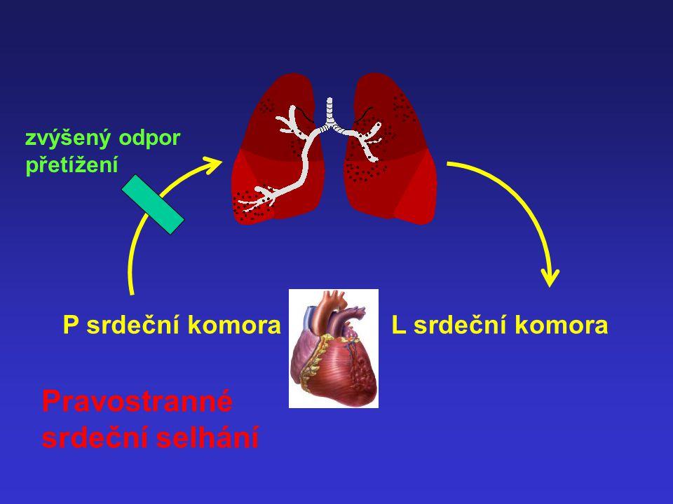 P srdeční komoraL srdeční komora nedostatečné plnění Snížení srdečního výdeje