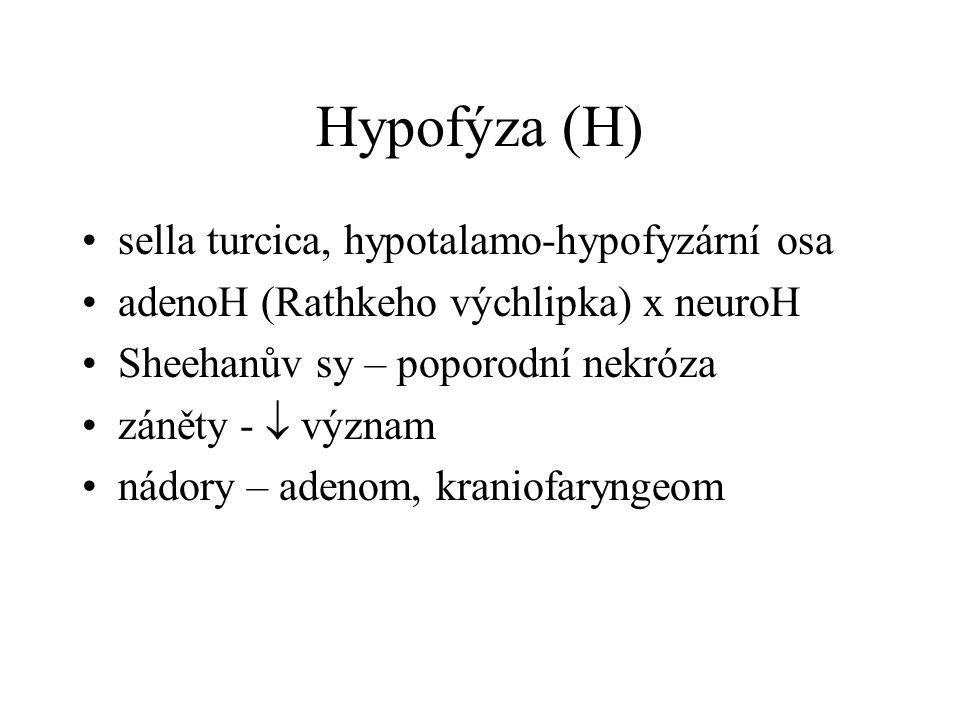 Nadledviny - kůra hypofce - Addisonova choroba (panhypokortikalismus) hypotenze, hypoglykémie, pigmentace hyperfce - steroidy – adrenogenitální sy - kortizol – Cushingův sy - aldosteron – Connův sy