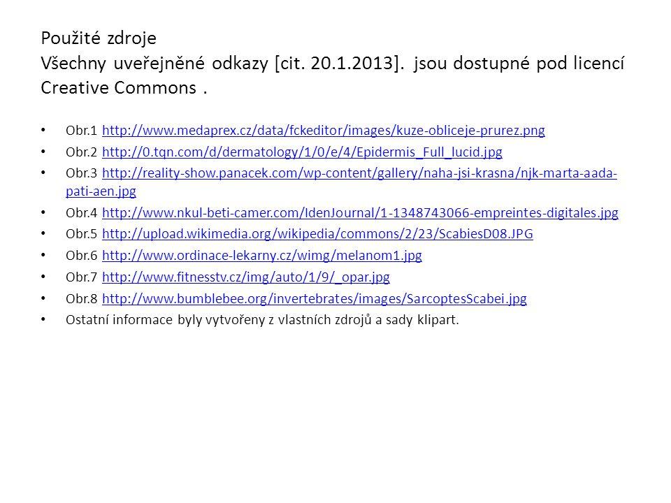 Použité zdroje Všechny uveřejněné odkazy [cit. 20.1.2013]. jsou dostupné pod licencí Creative Commons. Obr.1 http://www.medaprex.cz/data/fckeditor/ima