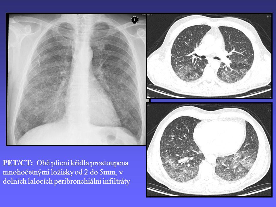 PET/CT: Obě plicní křídla prostoupena mnohočetnými ložisky od 2 do 5mm, v dolních lalocích peribronchiální infiltráty