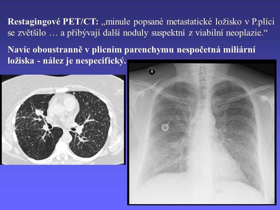 """Restagingové PET/CT: """"minule popsané metastatické ložisko v P.plíci se zvětšilo … a přibývají další noduly suspektní z viabilní neoplazie. Navíc oboustranně v plicním parenchymu nespočetná miliární ložiska - nález je nespecifický."""