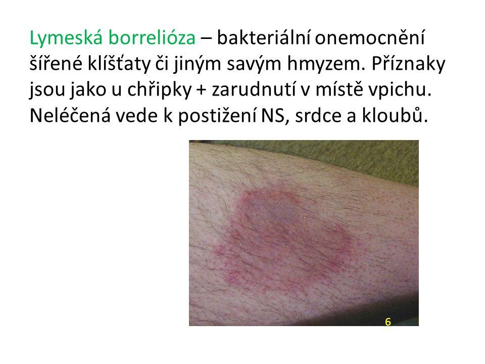 Lymeská borrelióza – bakteriální onemocnění šířené klíšťaty či jiným savým hmyzem.