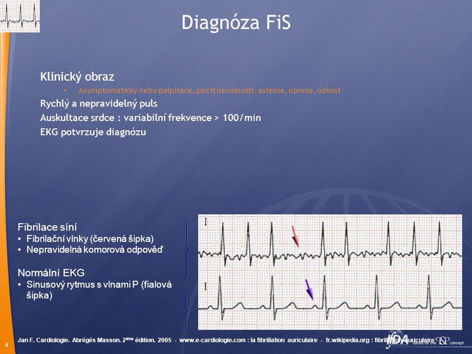 4 Diagnóza FiS Klinický obraz Asymptomatický nebo palpitace, pocit nevolnosti, astenie, oprese, úzkost Rychlý a nepravidelný puls Auskultace srdce : variabilní frekvence > 100/min EKG potvrzuje diagnózu Jan F.