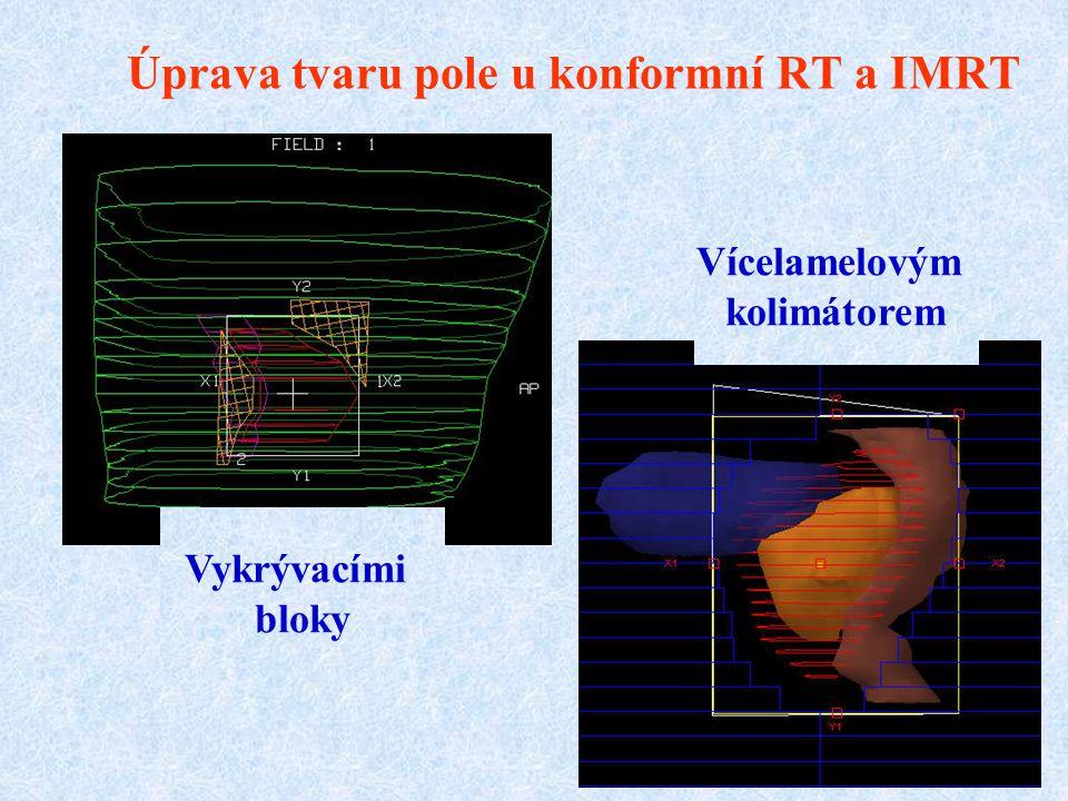 Úprava tvaru pole u konformní RT a IMRT Vykrývacími bloky Vícelamelovým kolimátorem
