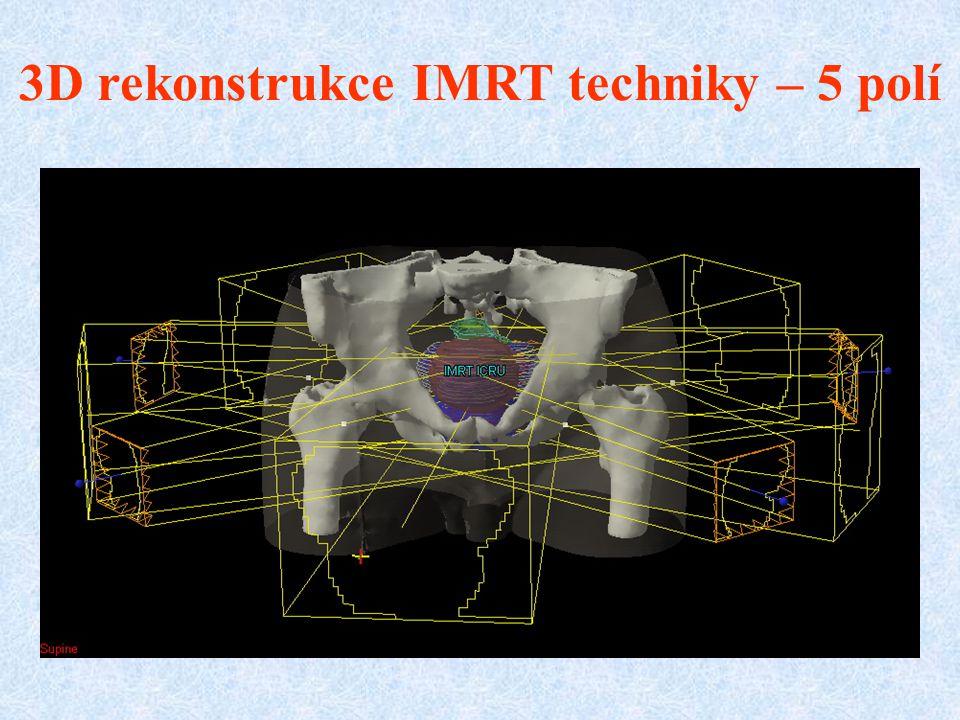 3D rekonstrukce IMRT techniky – 5 polí