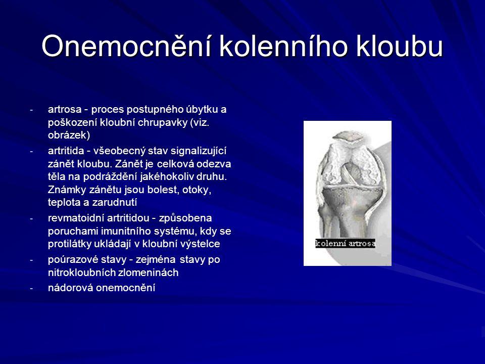 Onemocnění kolenního kloubu - - artrosa - proces postupného úbytku a poškození kloubní chrupavky (viz. obrázek) - - artritida - všeobecný stav signali