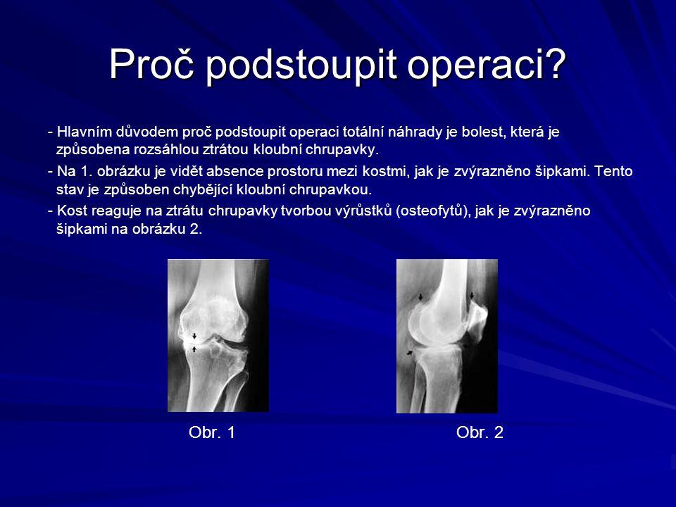 Proč podstoupit operaci? - Hlavním důvodem proč podstoupit operaci totální náhrady je bolest, která je způsobena rozsáhlou ztrátou kloubní chrupavky.