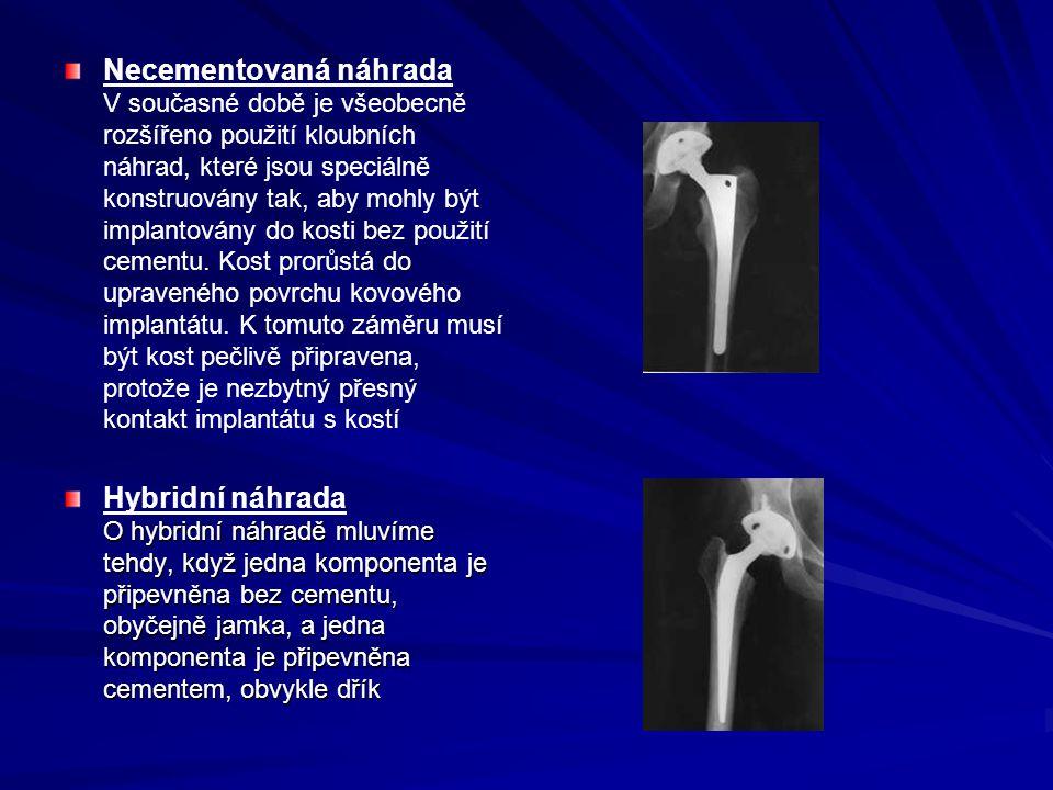 Necementovaná náhrada V současné době je všeobecně rozšířeno použití kloubních náhrad, které jsou speciálně konstruovány tak, aby mohly být implantová