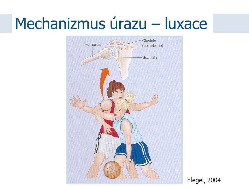 Flegel, 2004 Mechanizmus úrazu – luxace
