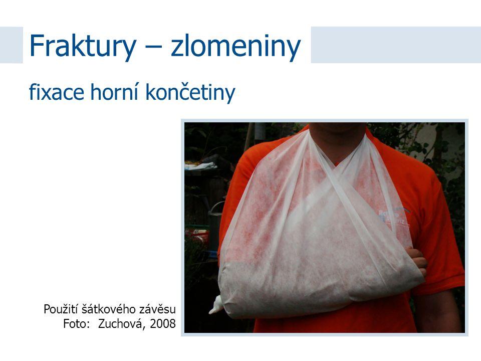 fixace horní končetiny Fraktury – zlomeniny Použití šátkového závěsu Foto: Zuchová, 2008